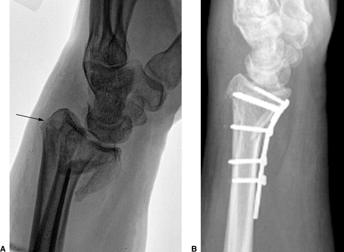 Volar Barton U2019s Fractures With Concomitant Dorsal Fracture