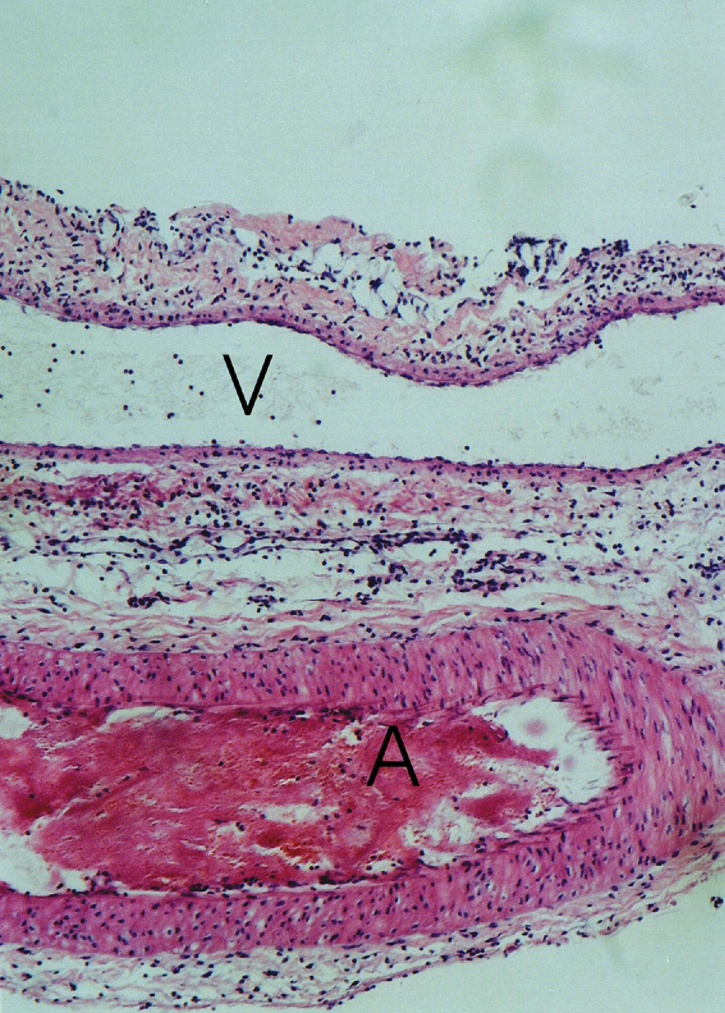 avascular tissue Vascular tissue (blood and lymph) blood and lymph represent the final form of connective tissue we will study in the high magnification image, notice that blood.
