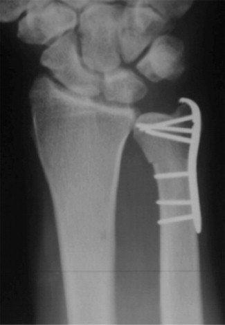 Metaphyseal Ulnar Shortening Osteotomy For The Treatment