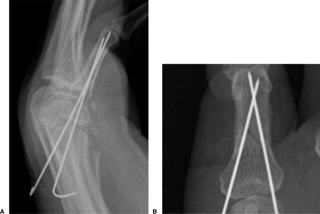 percutaneous pinning of fractures in the proximal third of the proximal phalanx  complications