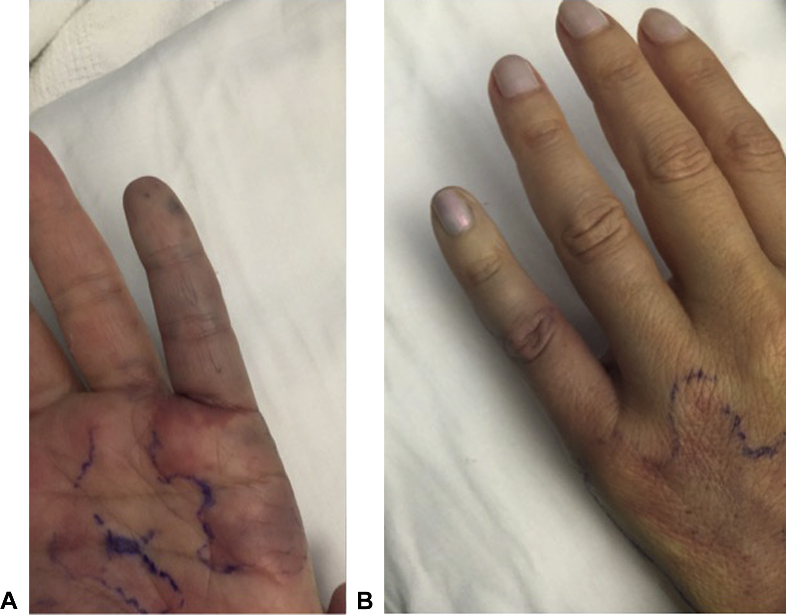 acute hand ischemia following elective venous